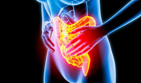 Bowel-cancer-A-new-discovery-could-revolutionise-treatment-1049291